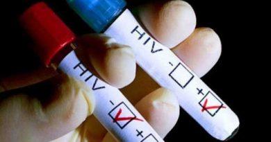 Los médicos confirman la segunda curación del mundo de un paciente con VIH
