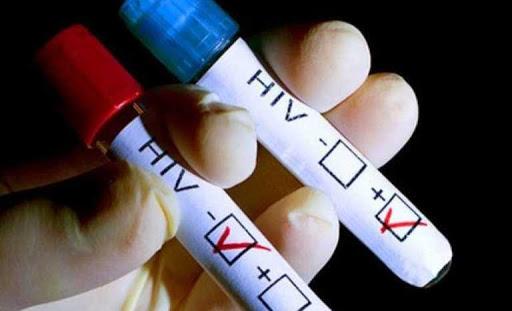 cura hiv